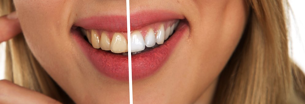 Tips for Whiter Teeth